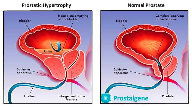 Prostatitis symptomes