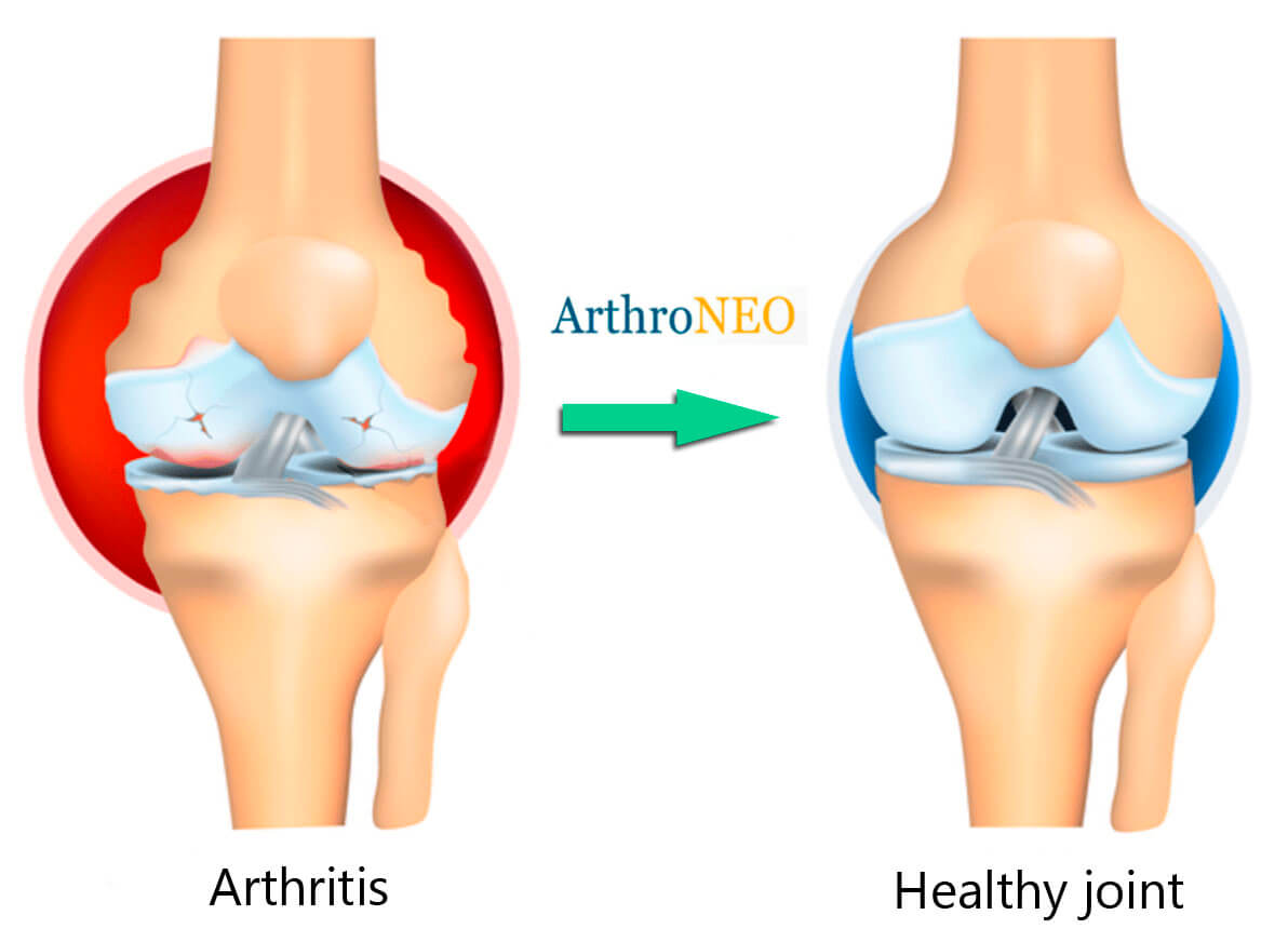 joint treatment before and after